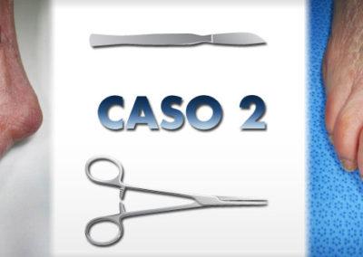 allucevalgo_caso02