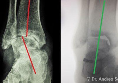 Protesi Distorsioni della caviglia Immagini