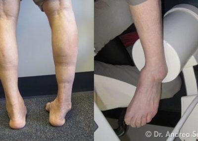 Piede con Distorsione della Caviglia