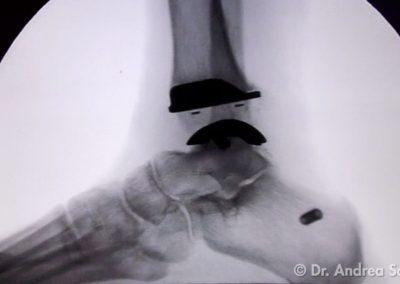 Protesi Distorsioni della caviglia