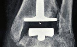Protesi caviglia immagini di ecografia