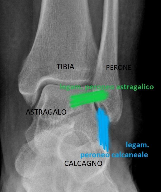 Anatomia Caviglia Normale