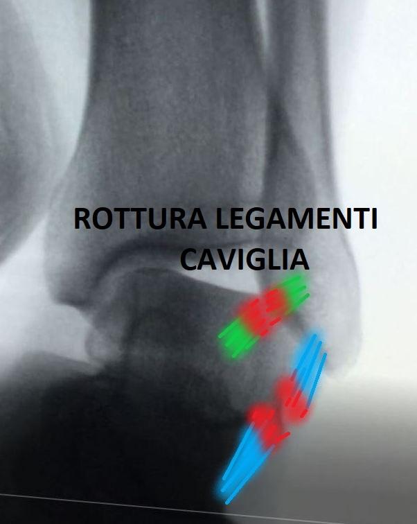 rottura legamenti caviglia quando operare