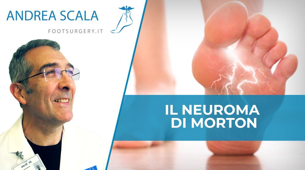 Neuroma di Morton: analisi della patologia