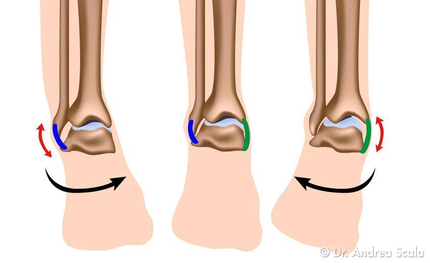Distorsione alla caviglia e tempi di recupero