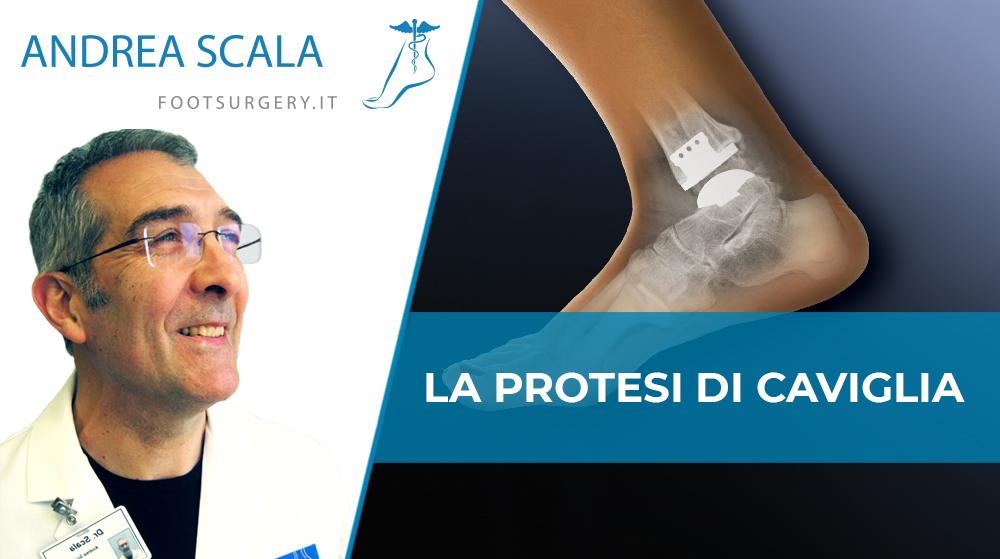 Chirurgia protesi di caviglia. Quando la protesi è indicata nell'artrosi della caviglia?