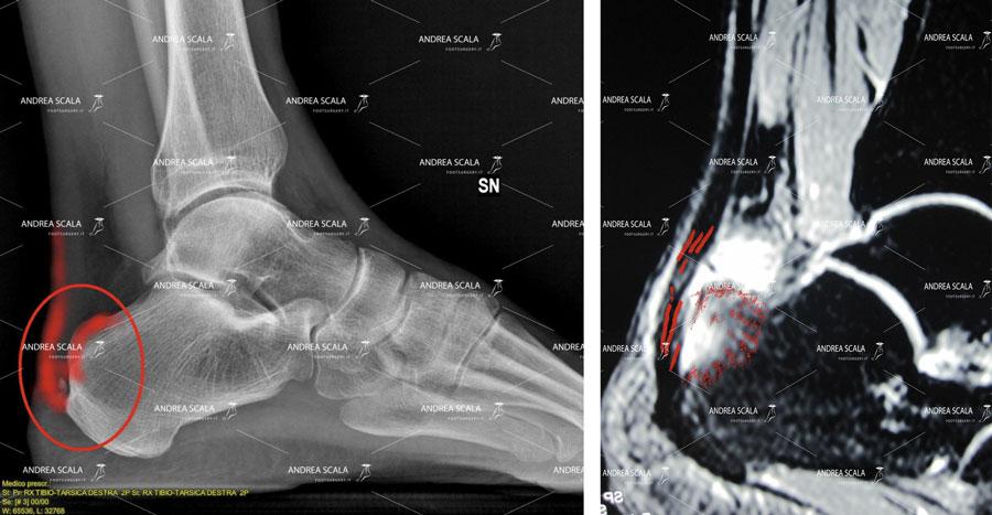 radiografia e risonanza magnetica de Dott. Scala