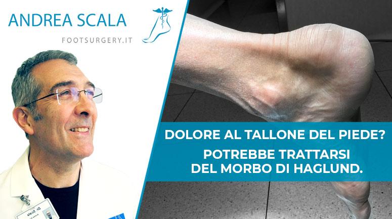 Senti dolore al tallone del piede? Potrebbe trattarsi del Morbo di Haglund