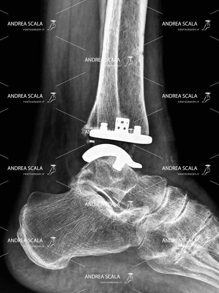 Protesi di Caviglia: intervento e riabilitazione