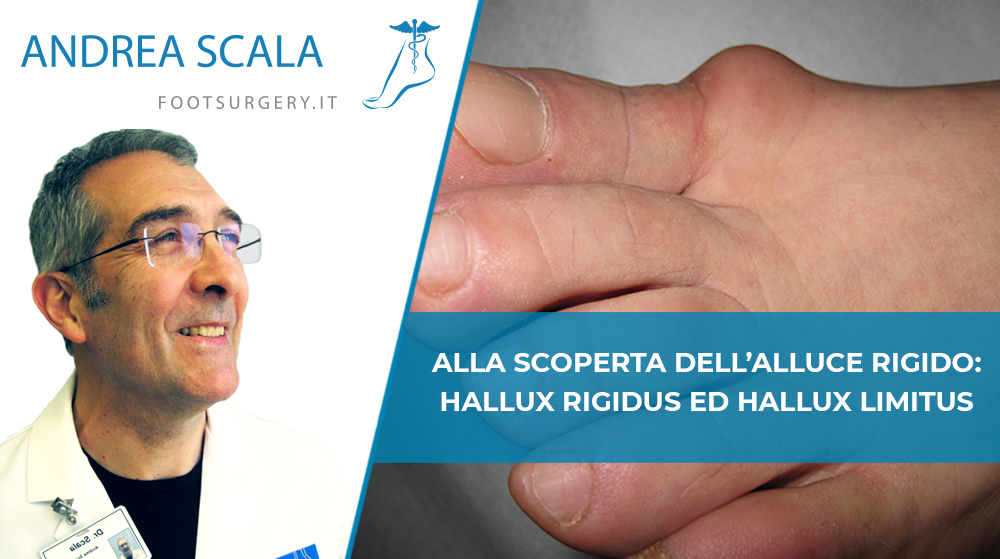 Alluce rigido copertina del Dott. Andrea Scala