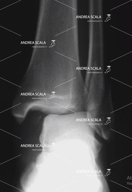 rigidità articolare protesi caviglia