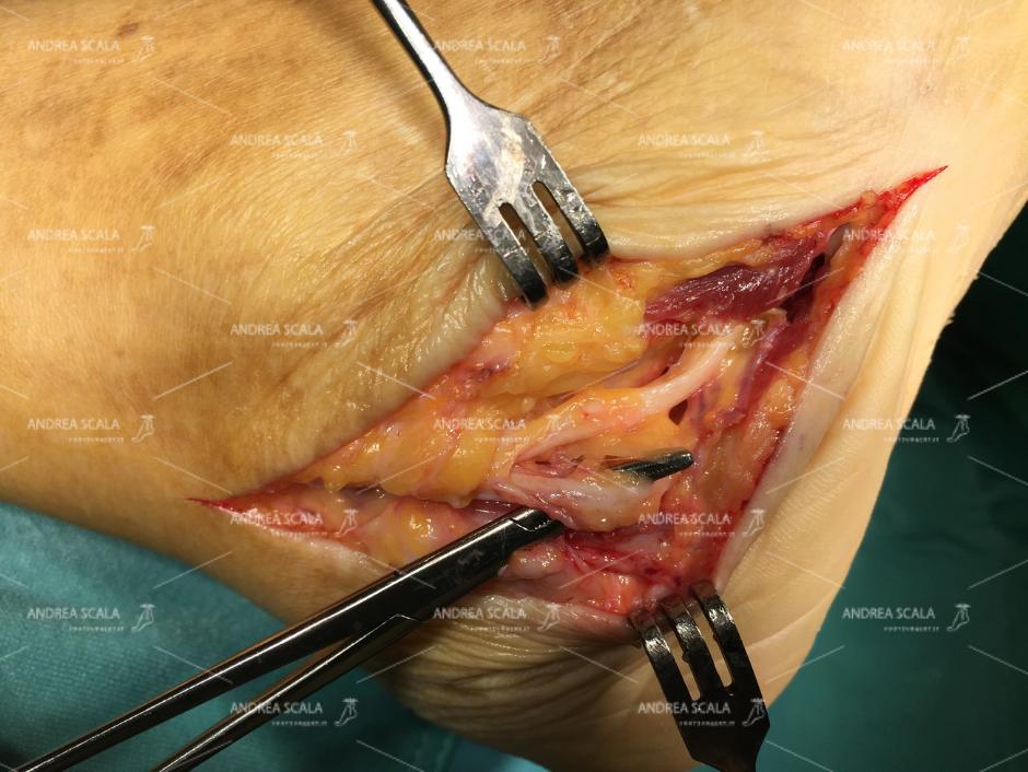Lesione neurologica nervo tibiale posteriore durante l'operazione