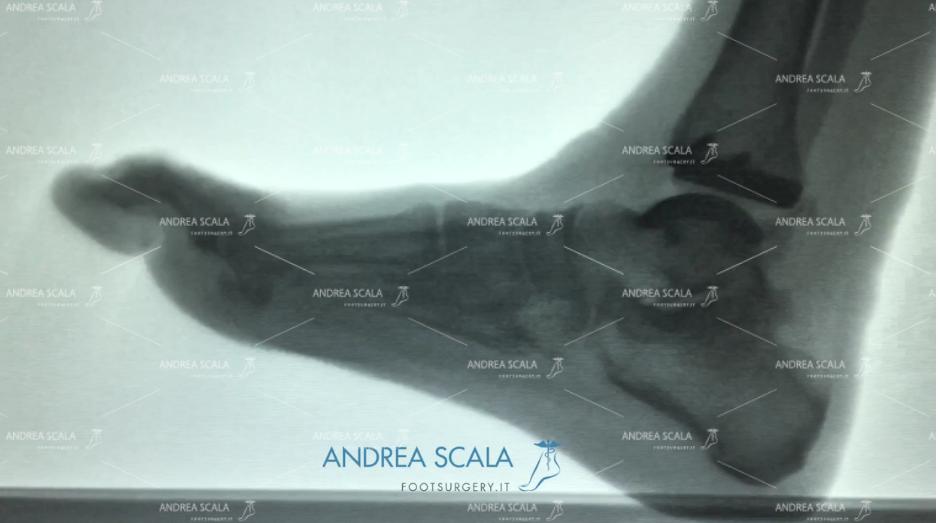 Protesi caviglia radiografia in movimento