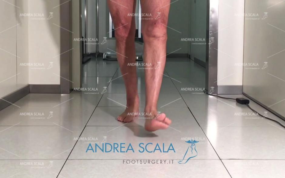 Paziente con Protesi di caviglia cammina perfettamente