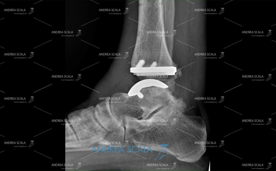 Radiografia Protesi di caviglia laterale