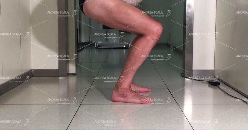 uomo con Protesi di caviglia recupero funzionale
