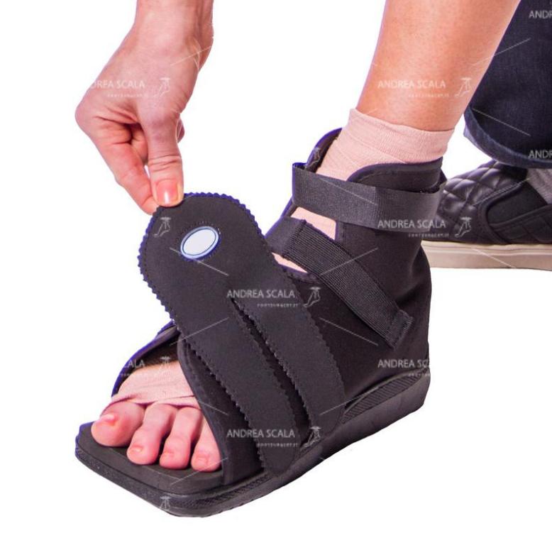 lesione neurologica scarpa per operazione all'alluce