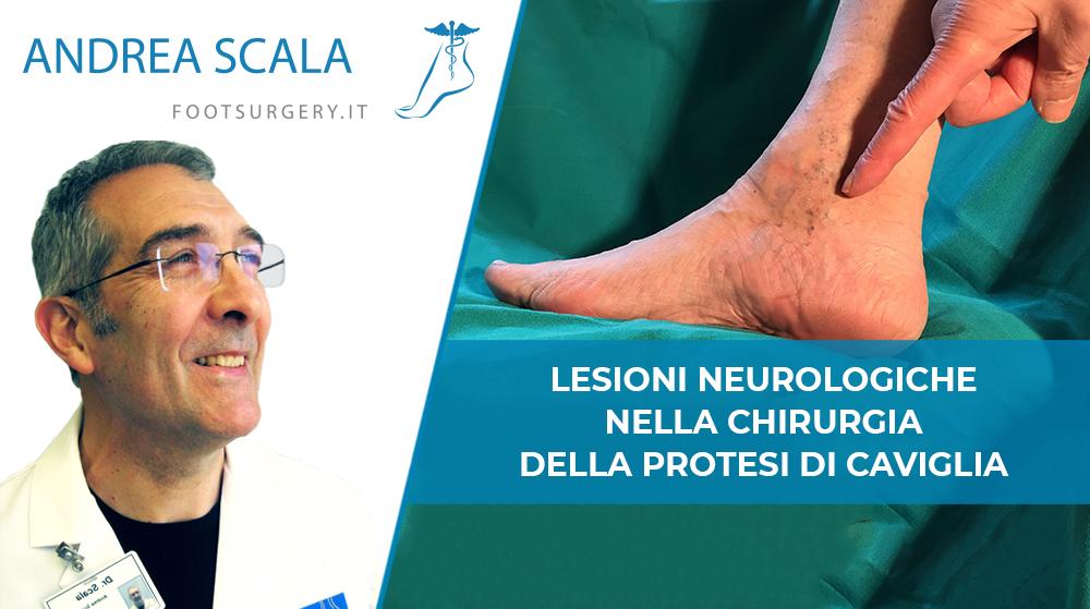 Lesioni Neurologiche nella Chirurgia della Protesi della Caviglia
