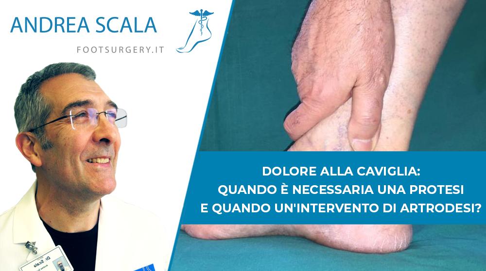 Dolore alla caviglia: quando è necessaria una protesi e quando un'intervento di artrodesi?