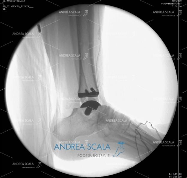 ARTRODESI radiografia laterale protesi definitiva