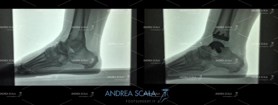 ARTRODESI radiografia in movimento