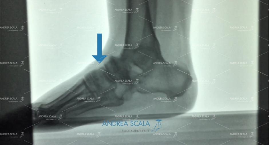 ARTRODESI radiografia laterale scafoide