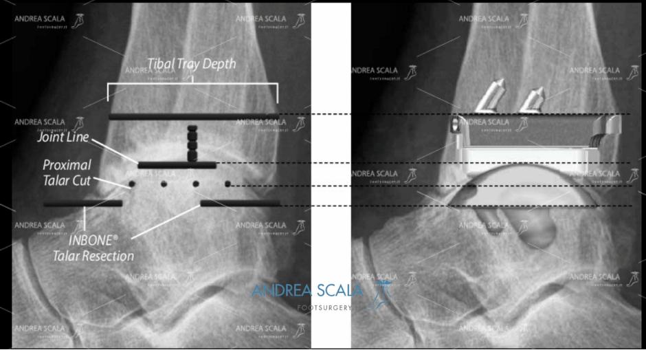 ARTRODESI radiografia laterale doppia