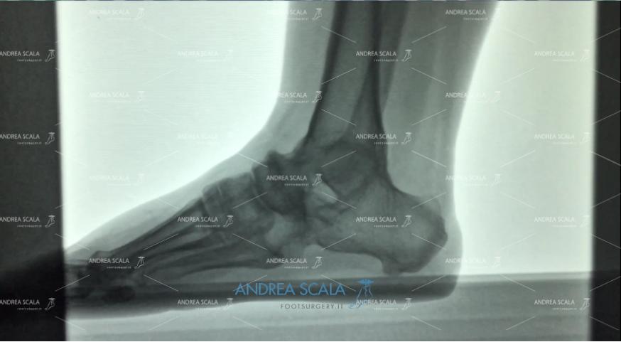 artrodesi: radiografia laterale