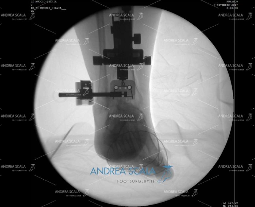ARTRODESI: radiografia posteriore