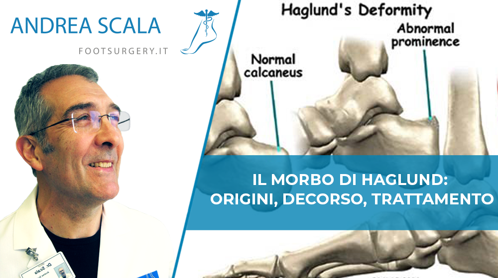 Il Morbo di Haglund: origini, decorso, trattamento