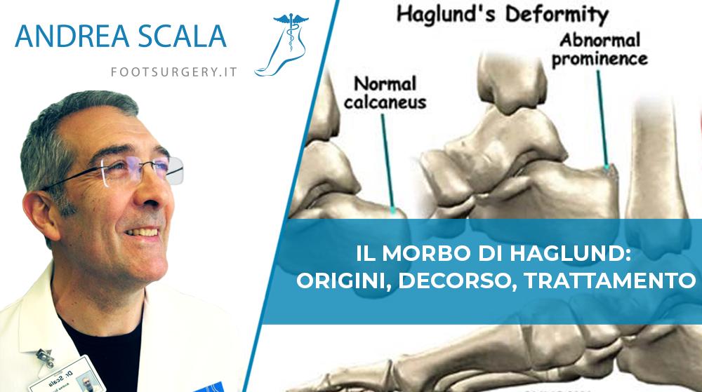 Morbo di Haglund Dottor Scala