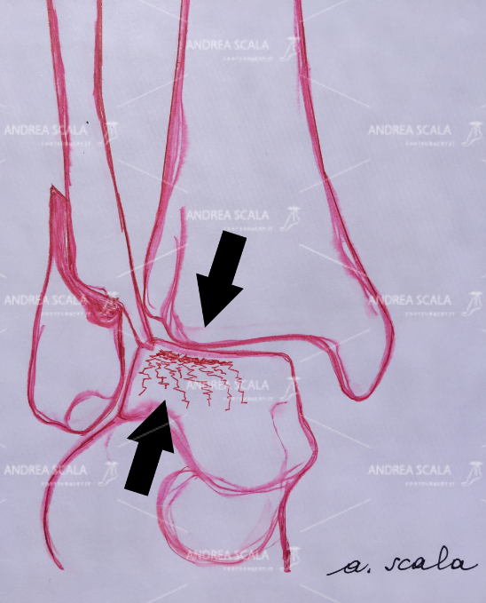 LA PROTESI DI CAVIGLIA ECOLOGICA frattura cartilagine