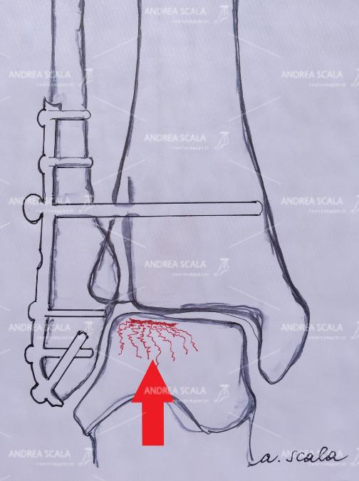 LA PROTESI DI CAVIGLIA ECOLOGICA placca cartilagine