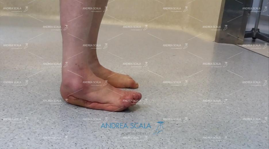 Protesi di Caviglia e paralisi uomo cammina sul bordo del piede laterale
