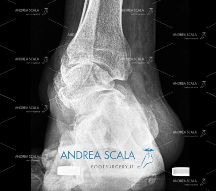 Radiografia Protesi di Caviglia e paralisi
