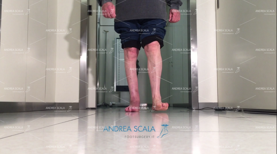 Protesi di Caviglia e paralisi uomo cammina senza stampelle