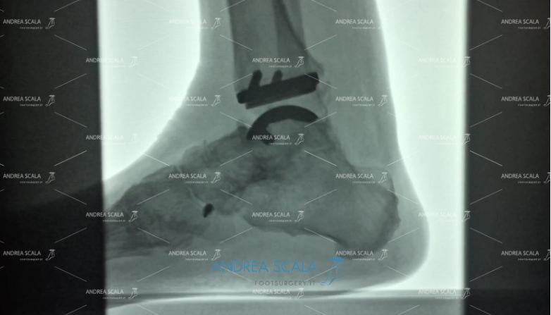 Radiografia finale Protesi di Caviglia e paralisi uomo risultati