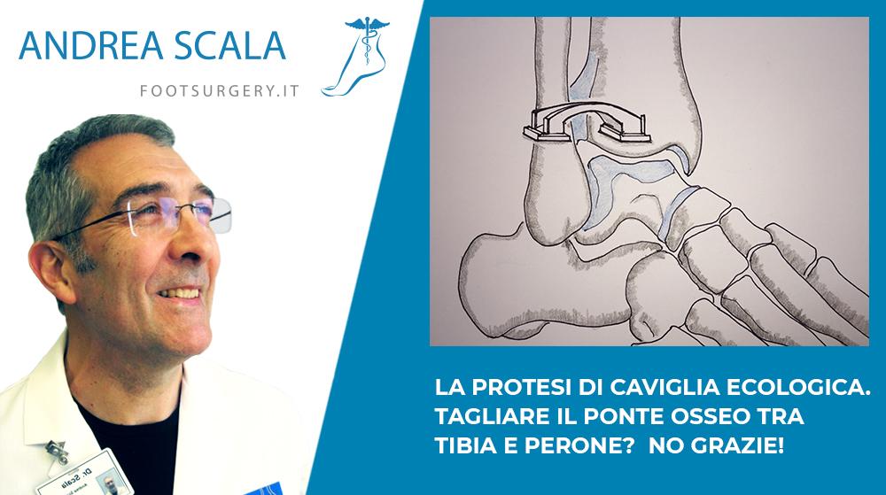 La protesi di Caviglia Ecologica. Tagliare il ponte osseo tra Tibia e Perone? No, Grazie!