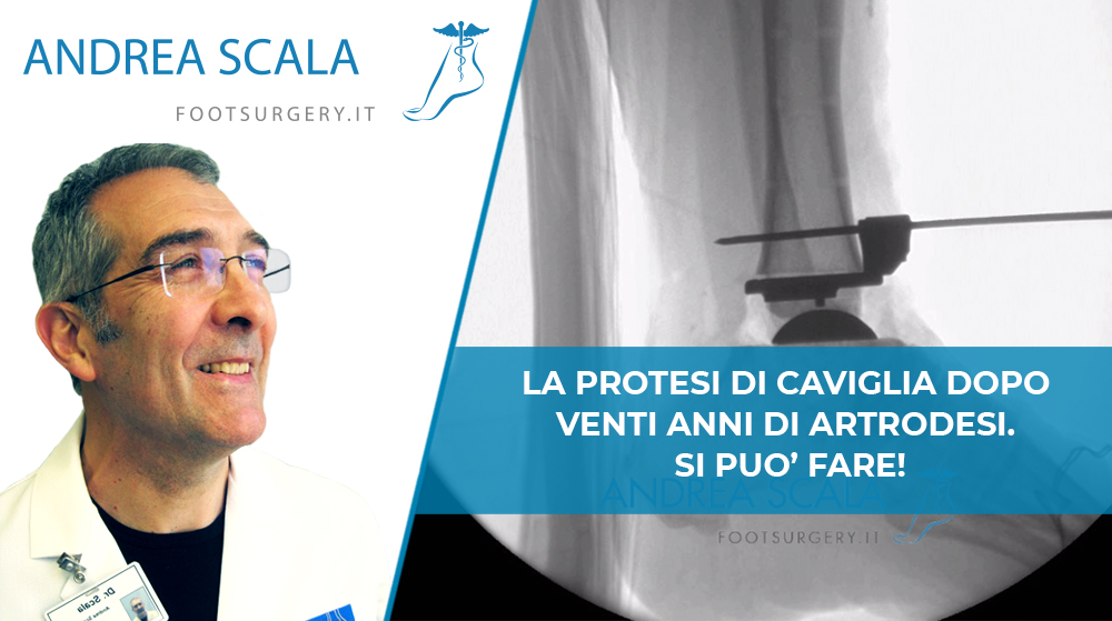 LA PROTESI DI CAVIGLIA DOPO VENTI ANNI DI ARTRODESI. SI PUO' FARE!