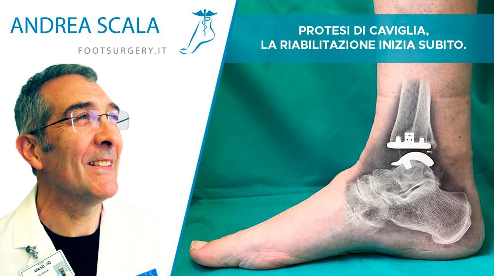 Protesi di Caviglia, la riabilitazione inizia subito