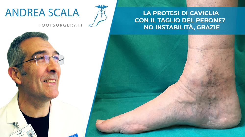 La Protesi di caviglia con taglio del Perone? No Instabilità, Grazie