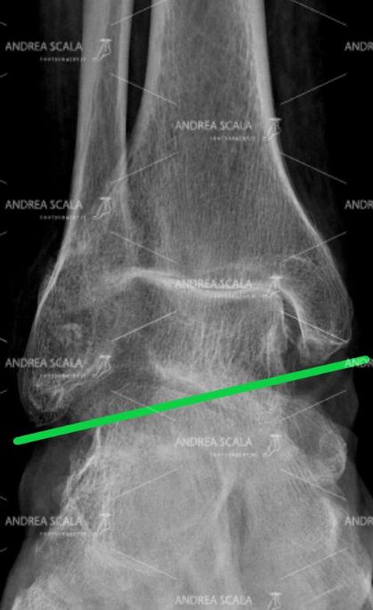 taglio del Perone Formis Riccardo Pre radiografia prima dell'operazione