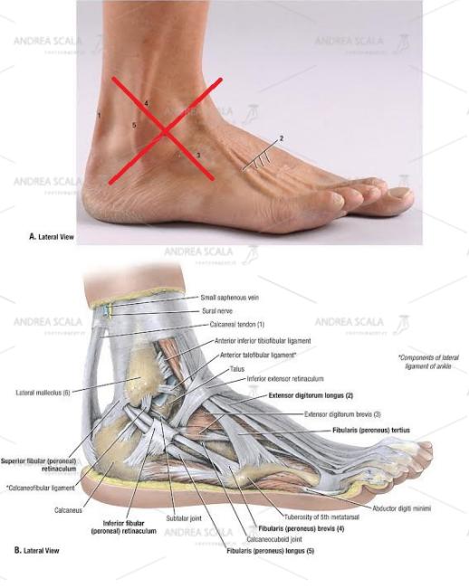 Non si dovrebbe accedere alla caviglia per via laterale perché si dovrebbe tagliare il perone, divaricare i tendini peroneali e il nervo surale. Si divrebbero tagliare i legamenti laterali e staccare il perone dalla sindesmosi tibio-peroneale distale.