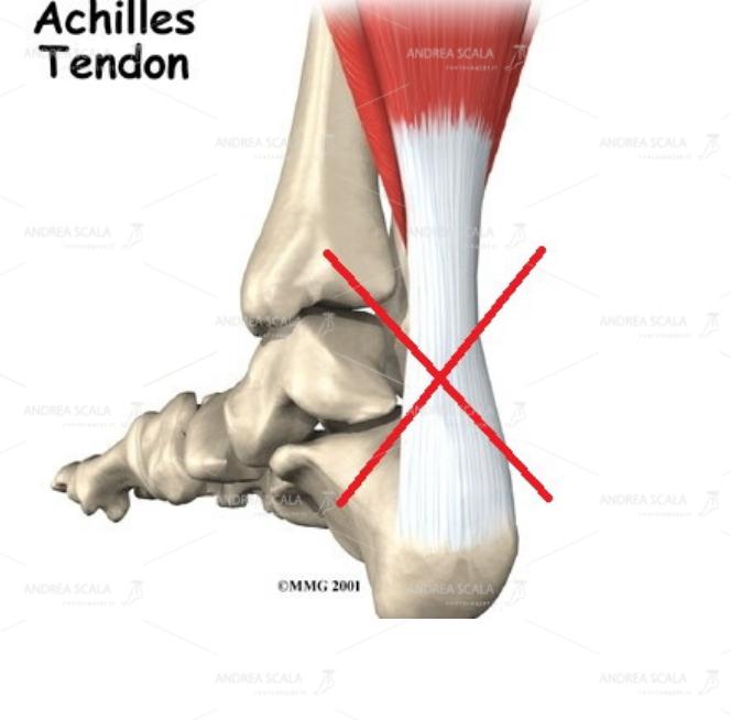 Non si accede alla caviglia per via posteriore perché si dovrebbe tagliare il tendine d'Achille.