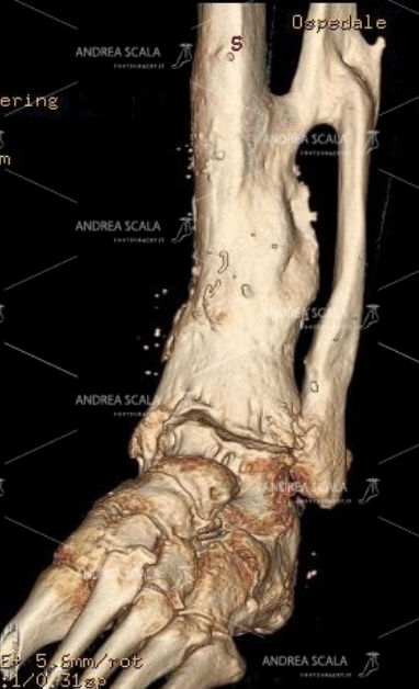 La TAC 3D mostra la grave artrosi della caviglia dopo la frattura. I malleoli sono guariti. La protesi della caviglia deve sostituire l'articolazione malata con l'accesso anteriore. Non c'è alcun bisogno di rompere nuovamente il perone.