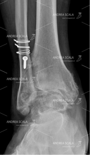 La RX anteriore mostra la guarigione della frattura del perone. La caviglia soffre per la artrosi della caviglia, ma ha recuperato la stabilità.