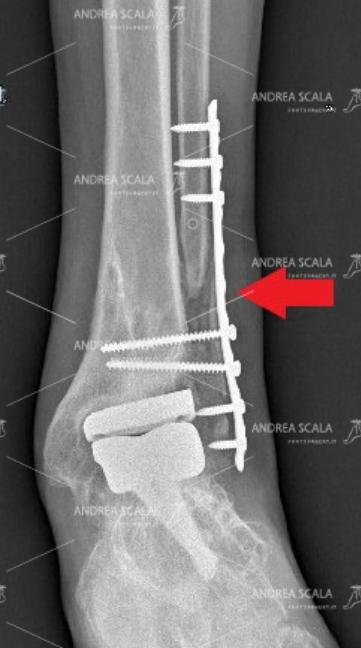 La RX anteriore mostra che il perone non si è ri-attaccato. La freccia indica che la placca e le viti tengono insieme alcuni frammenti dell'ex perone. La caviglia è molto dolorosa ed instabile.