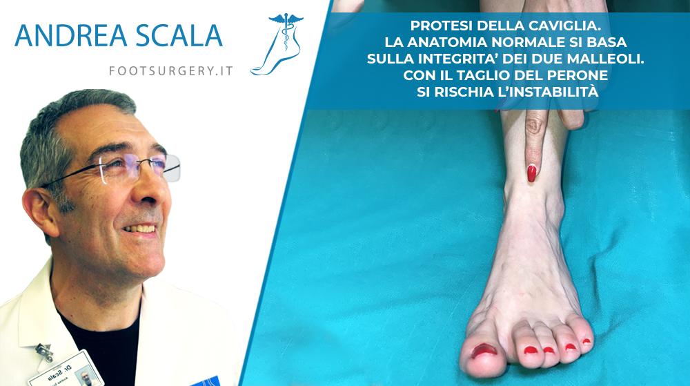 Protesi della Caviglia. L'Anatomia normale si basa sull'integrità dei due Malleoli. Con il taglio del Perone si rischia l'instabilità
