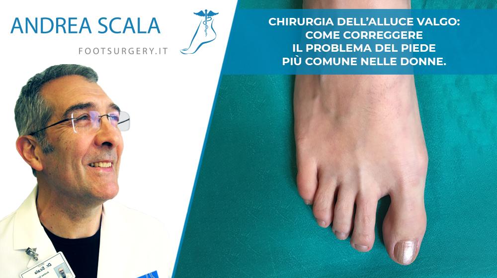 Chirurgia dell'Alluce Valgo: come correggere il problema del piede più comune nelle donne.