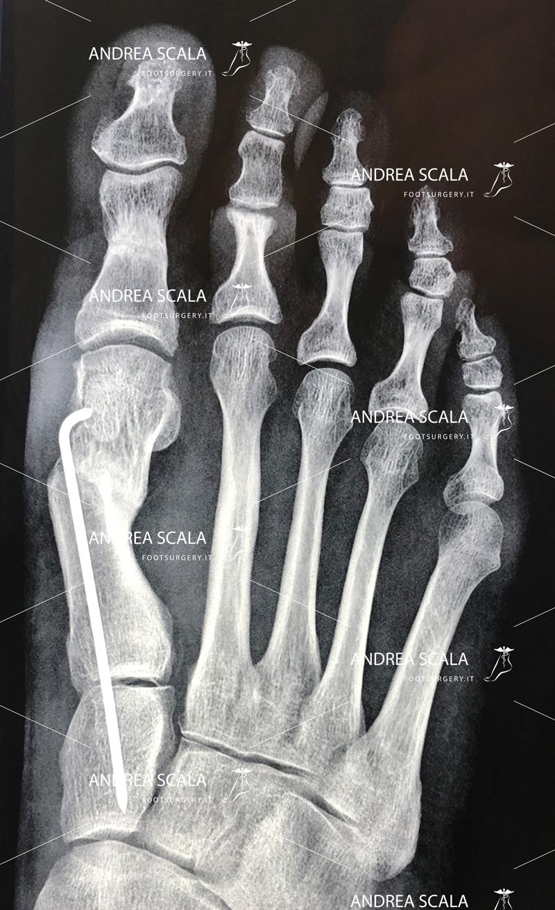 alluce valgo radiografia intervento